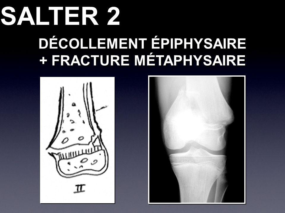 SALTER 2 DÉCOLLEMENT ÉPIPHYSAIRE + FRACTURE MÉTAPHYSAIRE DÉCOLLEMENT ÉPIPHYSAIRE + FRACTURE MÉTAPHYSAIRE