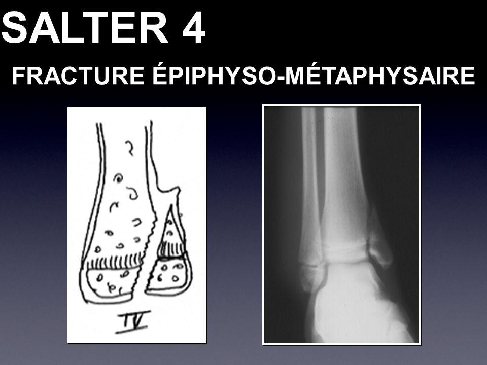SALTER 4 FRACTURE ÉPIPHYSO-MÉTAPHYSAIRE