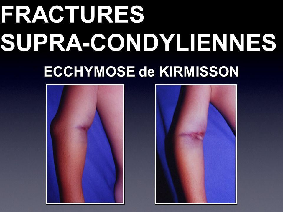 FRACTURESSUPRA-CONDYLIENNESFRACTURESSUPRA-CONDYLIENNES ECCHYMOSE de KIRMISSON