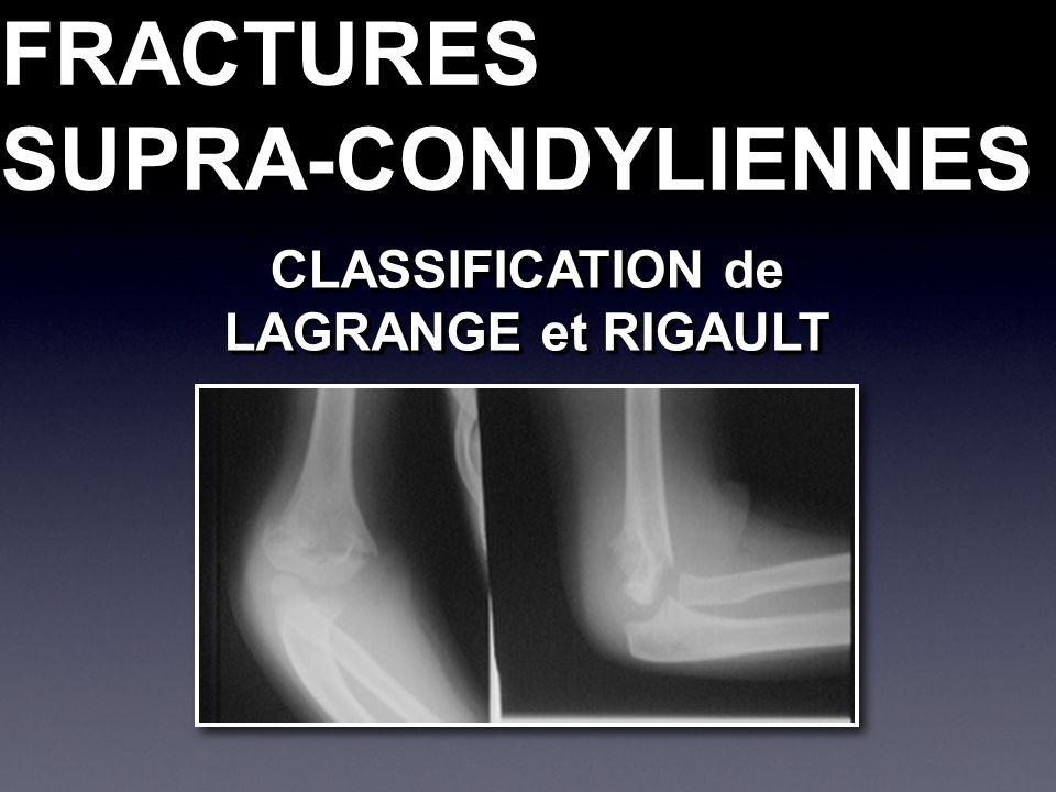 FRACTURESSUPRA-CONDYLIENNESFRACTURESSUPRA-CONDYLIENNES CLASSIFICATION de LAGRANGE et RIGAULT CLASSIFICATION de LAGRANGE et RIGAULT