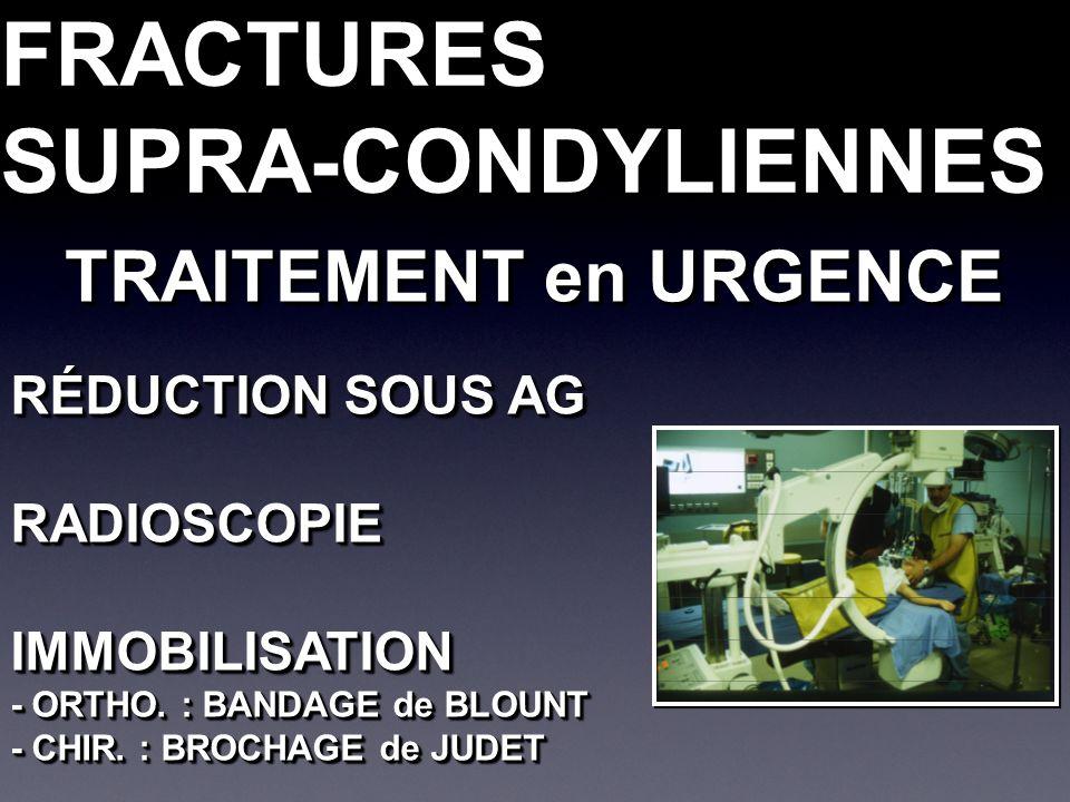 FRACTURESSUPRA-CONDYLIENNESFRACTURESSUPRA-CONDYLIENNES RÉDUCTION SOUS AG RADIOSCOPIEIMMOBILISATION - ORTHO. : BANDAGE de BLOUNT - CHIR. : BROCHAGE de