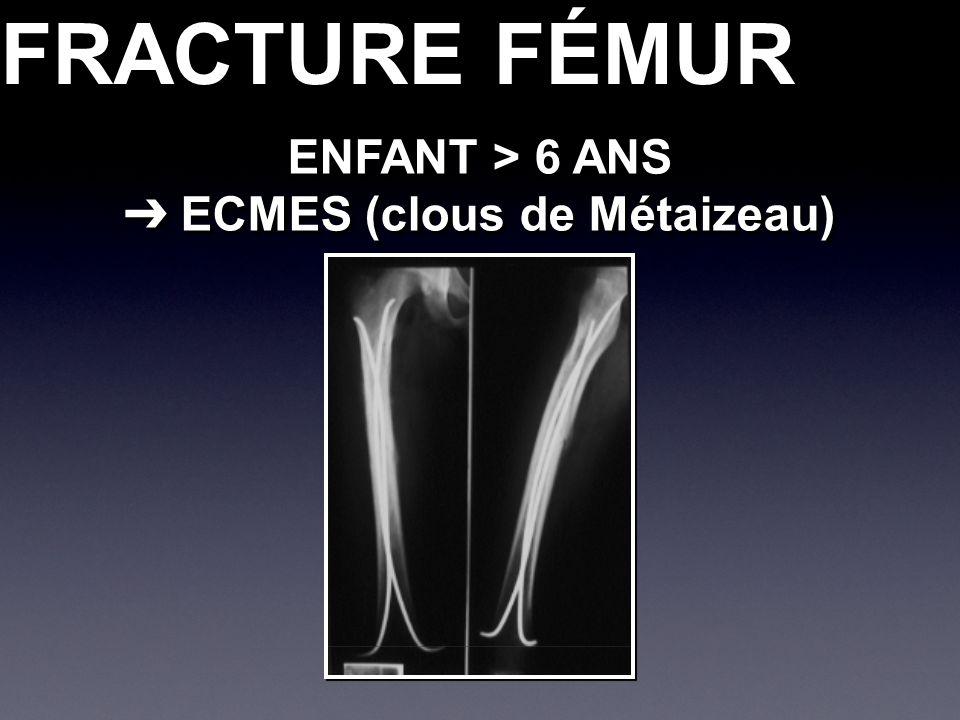 FRACTURE FÉMUR ENFANT > 6 ANS ECMES (clous de Métaizeau) ECMES (clous de Métaizeau) ENFANT > 6 ANS ECMES (clous de Métaizeau) ECMES (clous de Métaizea