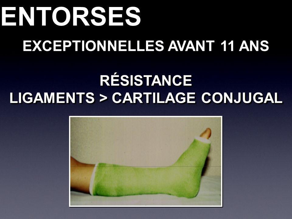 ENTORSESENTORSES EXCEPTIONNELLES AVANT 11 ANS RÉSISTANCE LIGAMENTS > CARTILAGE CONJUGAL RÉSISTANCE