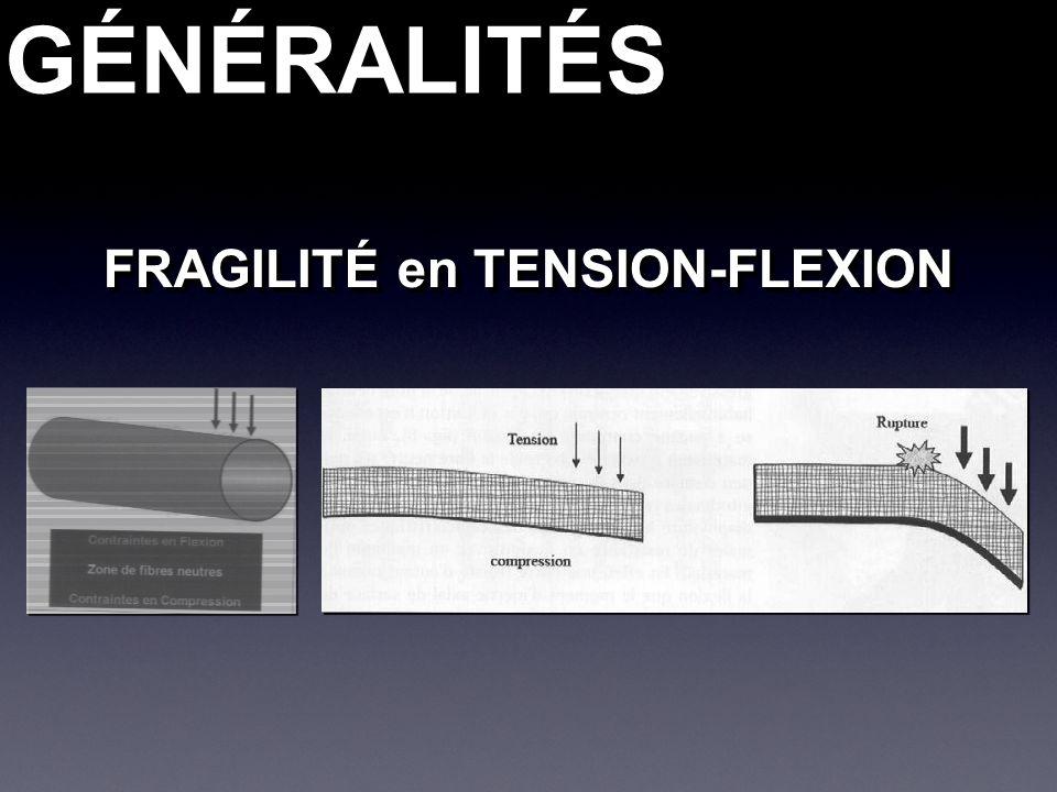 GÉNÉRALITÉSGÉNÉRALITÉS FRAGILITÉ en TENSION-FLEXION