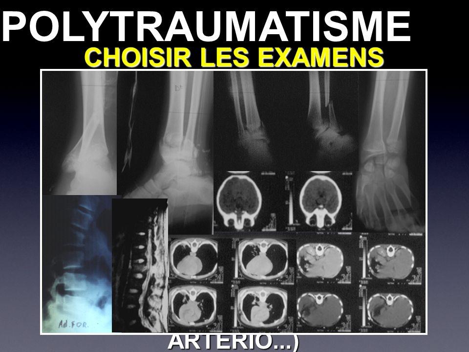CHOISIR LES EXAMENS COMPLEMENTAIRES SCANNER DU CORPS ENTIER +++ RADIO EN COMPLEMENT ECHOGRAPHIE, AUTRES (IRM, ARTERIO...) POLYTRAUMATISMEPOLYTRAUMATIS