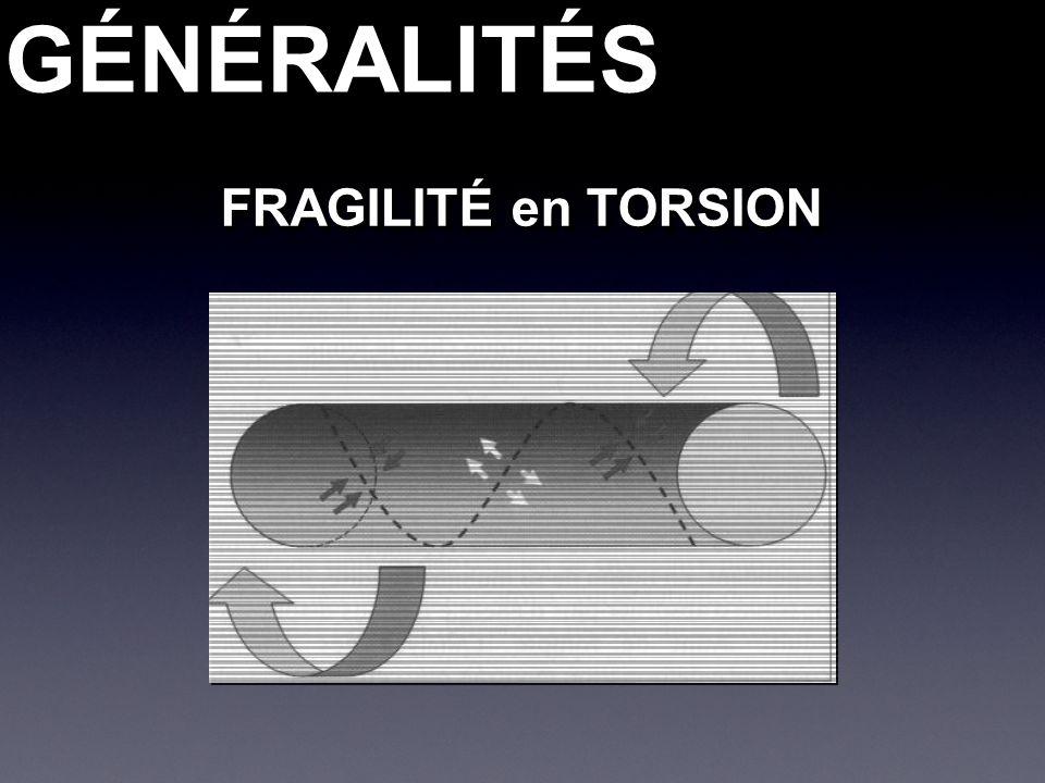 GÉNÉRALITÉSGÉNÉRALITÉS FRAGILITÉ en TORSION