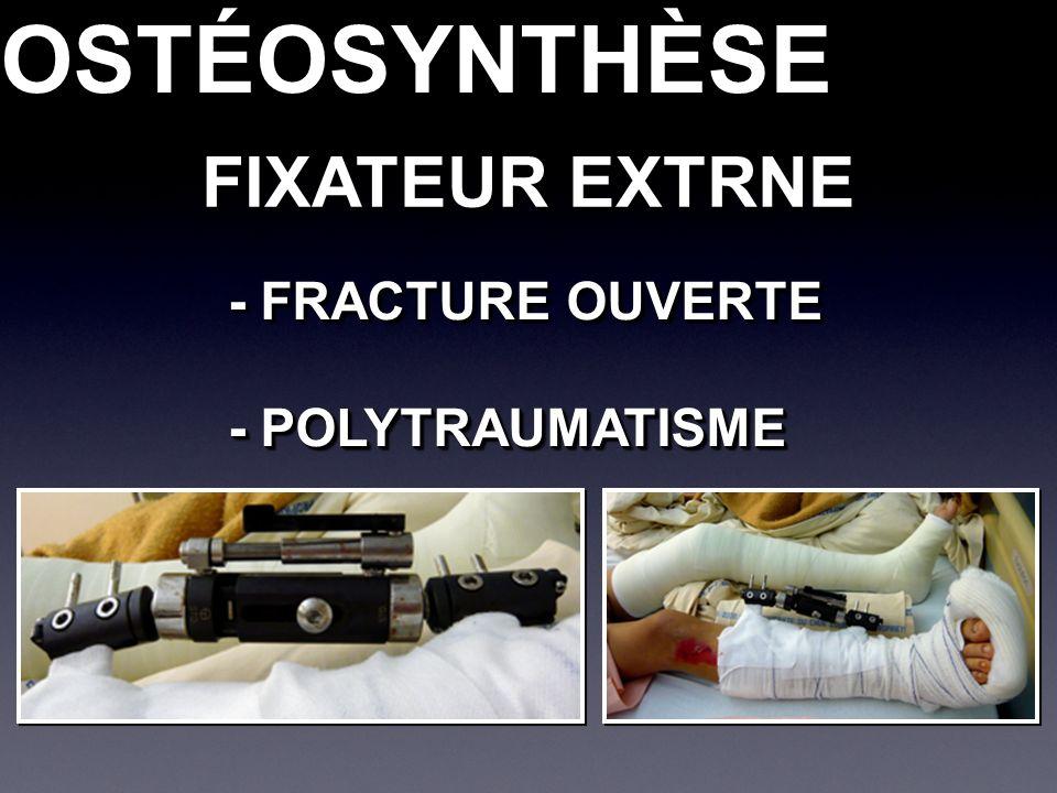 OSTÉOSYNTHÈSEOSTÉOSYNTHÈSE FIXATEUR EXTRNE - FRACTURE OUVERTE - POLYTRAUMATISME - FRACTURE OUVERTE - POLYTRAUMATISME