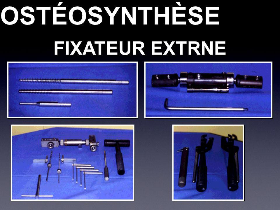 OSTÉOSYNTHÈSEOSTÉOSYNTHÈSE FIXATEUR EXTRNE