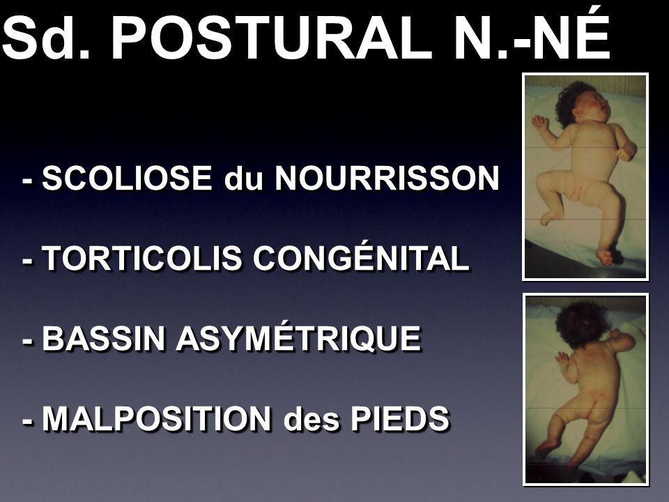Sd. POSTURAL N.-NÉ - SCOLIOSE du NOURRISSON - TORTICOLIS CONGÉNITAL - BASSIN ASYMÉTRIQUE - MALPOSITION des PIEDS - SCOLIOSE du NOURRISSON - TORTICOLIS