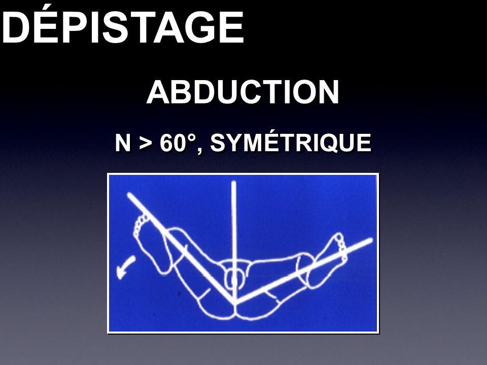 DÉPISTAGEDÉPISTAGEABDUCTIONABDUCTION N > 60°, SYMÉTRIQUE