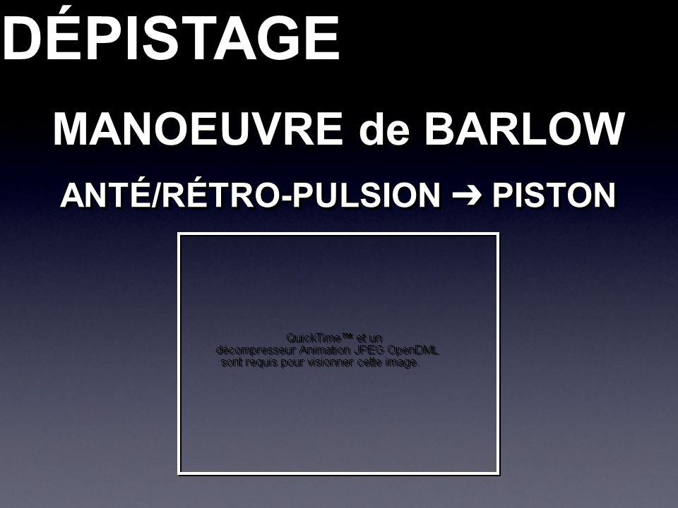 MANOEUVRE de BARLOW DÉPISTAGEDÉPISTAGE ANTÉ/RÉTRO-PULSION PISTON