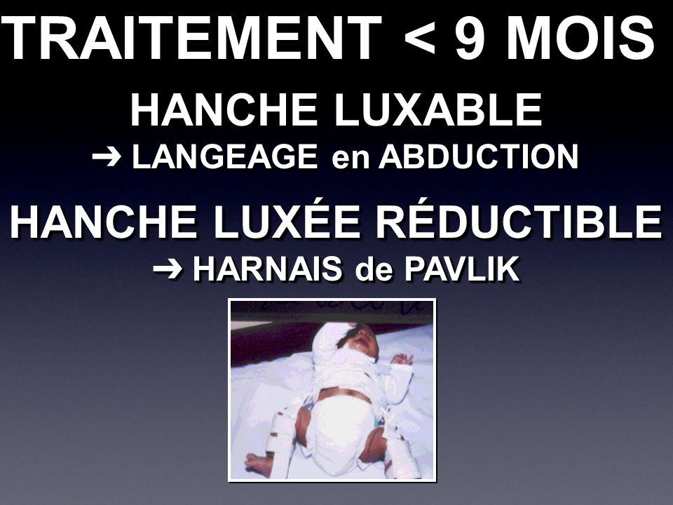 TRAITEMENT < 9 MOIS HANCHE LUXABLE LANGEAGE en ABDUCTION LANGEAGE en ABDUCTION HANCHE LUXABLE LANGEAGE en ABDUCTION LANGEAGE en ABDUCTION HANCHE LUXÉE RÉDUCTIBLE HARNAIS de PAVLIK HARNAIS de PAVLIK HANCHE LUXÉE RÉDUCTIBLE HARNAIS de PAVLIK HARNAIS de PAVLIK