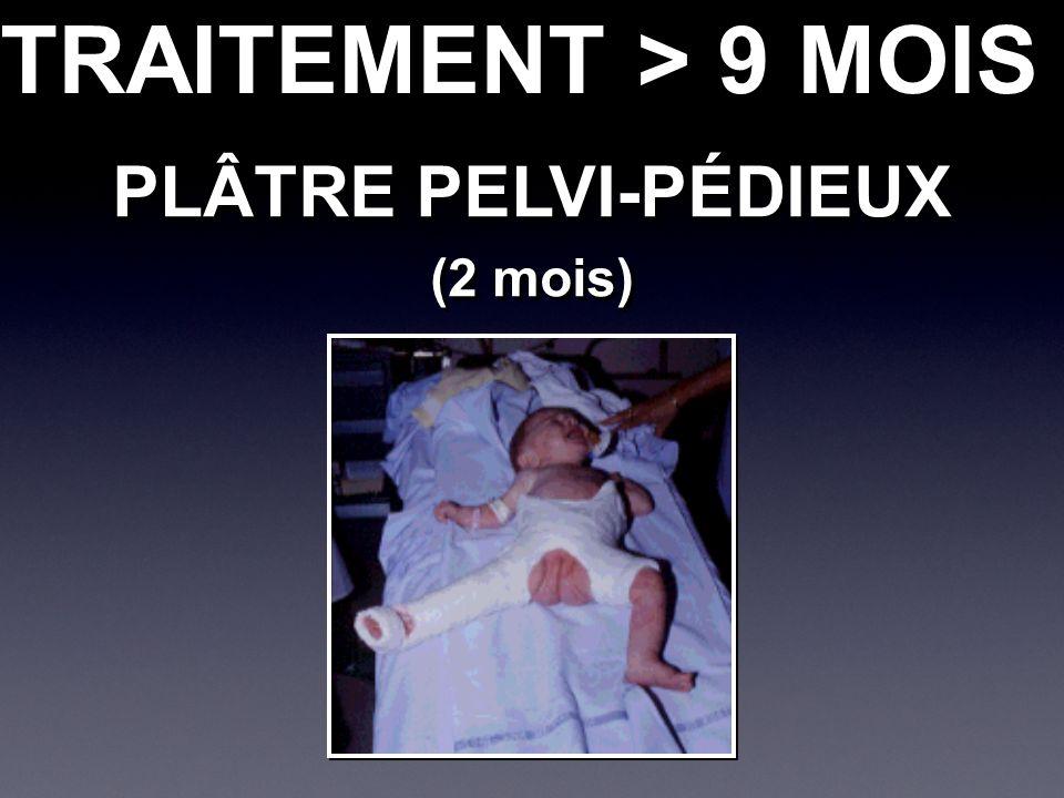 PLÂTRE PELVI-PÉDIEUX (2 mois) PLÂTRE PELVI-PÉDIEUX (2 mois) TRAITEMENT > 9 MOIS