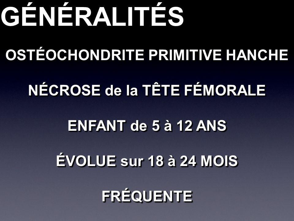 GÉNÉRALITÉSGÉNÉRALITÉS OSTÉOCHONDRITE PRIMITIVE HANCHE NÉCROSE de la TÊTE FÉMORALE ENFANT de 5 à 12 ANS ÉVOLUE sur 18 à 24 MOIS FRÉQUENTE OSTÉOCHONDRI