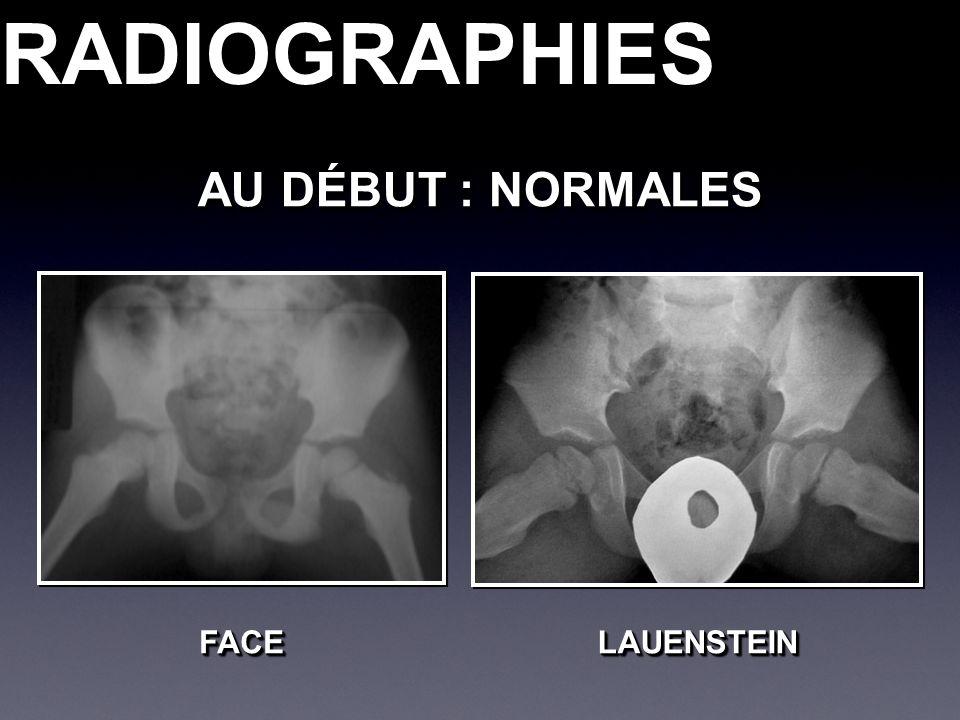 RADIOGRAPHIESRADIOGRAPHIES AU DÉBUT : NORMALES LAUENSTEINLAUENSTEINFACEFACE