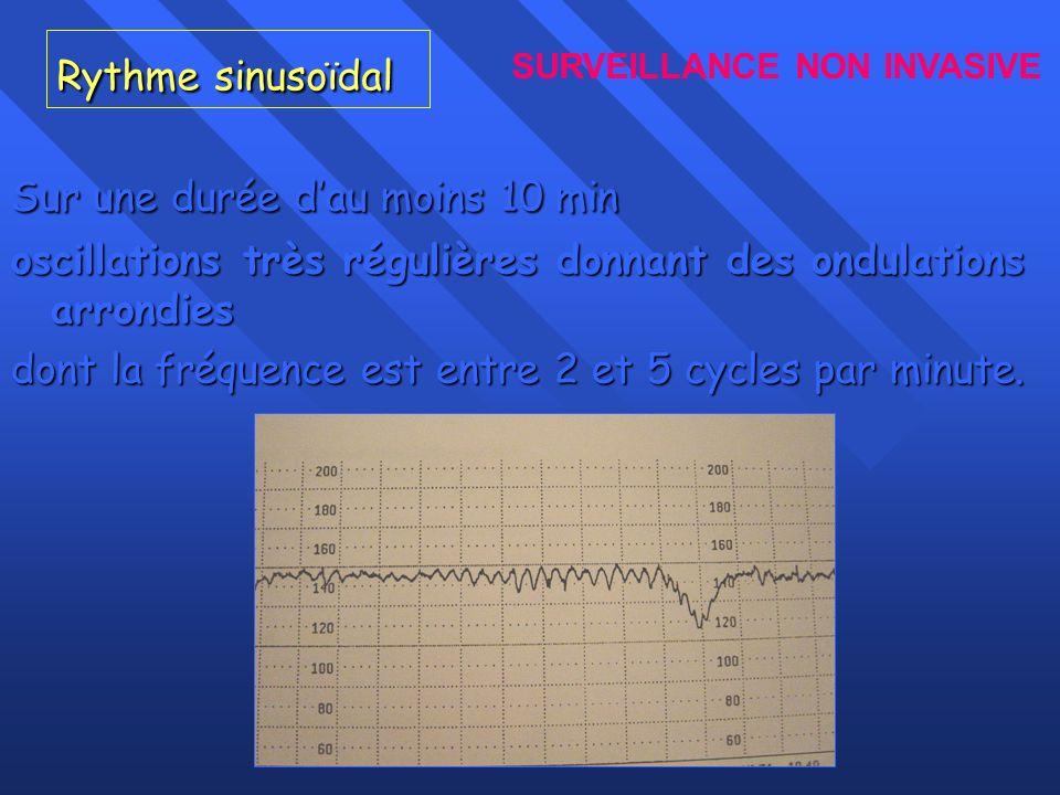 Rythme sinusoïdal Sur une durée dau moins 10 min oscillations très régulières donnant des ondulations arrondies dont la fréquence est entre 2 et 5 cyc