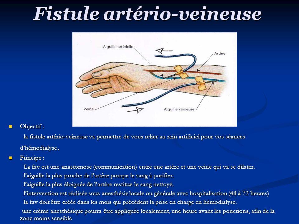 Fistule artério-veineuse Objectif : Objectif : la fistule artério-veineuse va permettre de vous relier au rein artificiel pour vos séances dhémodialyse.