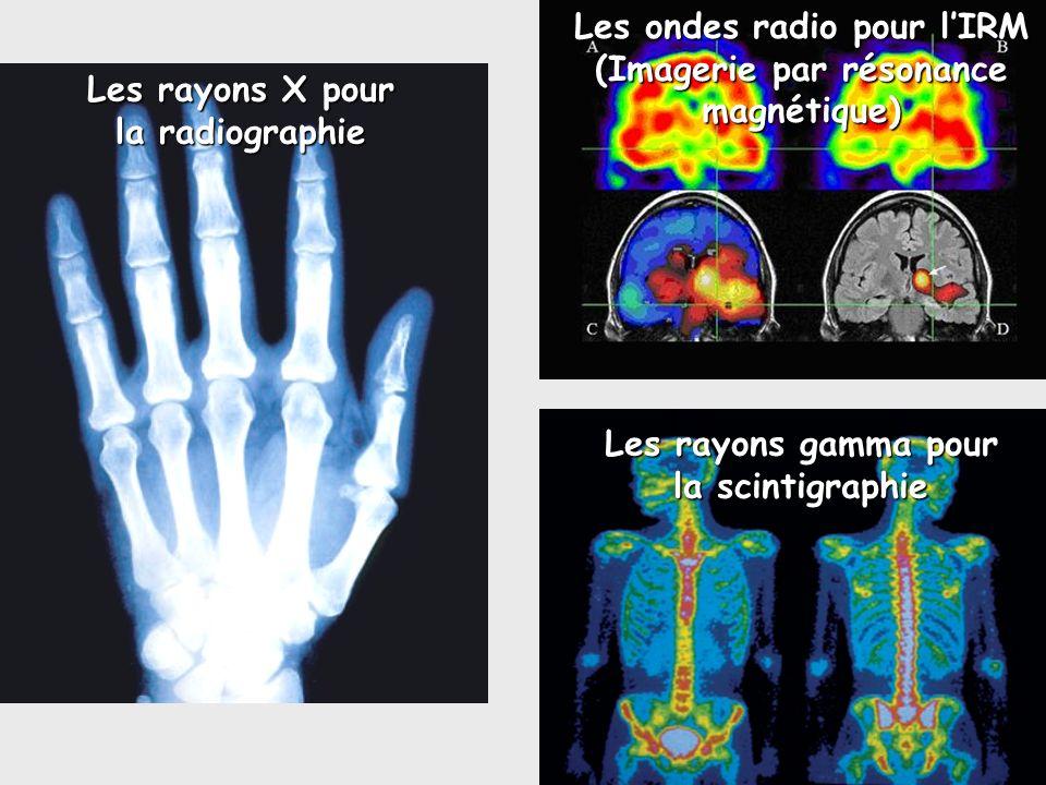 Les rayons gamma pour la scintigraphie Les rayons X pour la radiographie Les ondes radio pour lIRM (Imagerie par résonance magnétique)