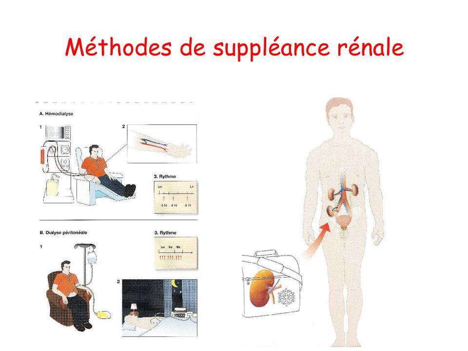 Méthodes de suppléance rénale