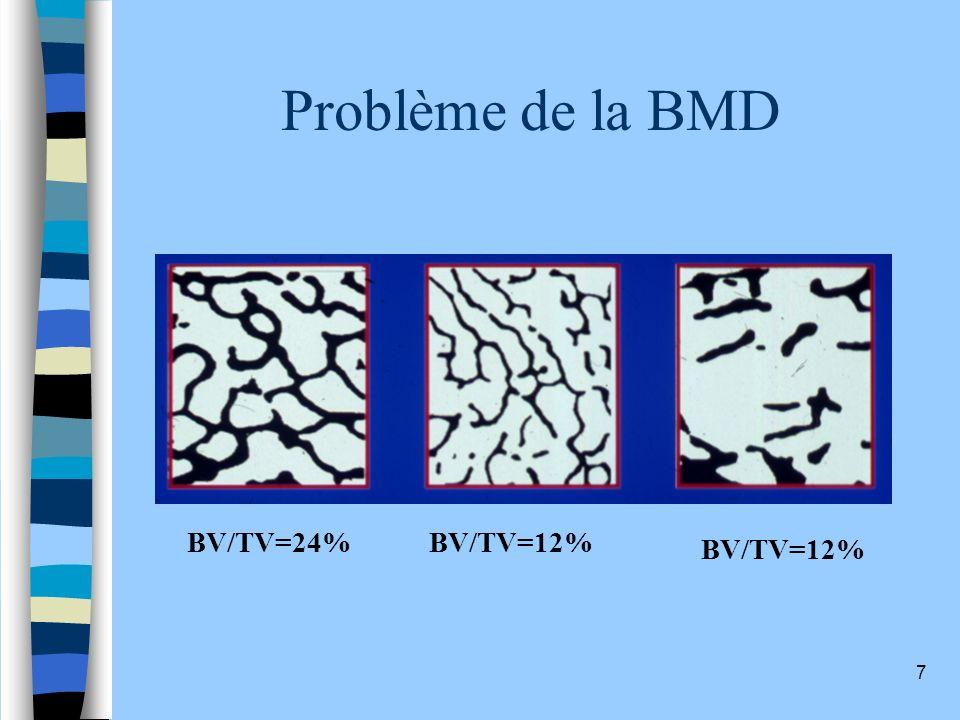 7 Problème de la BMD BV/TV=24%BV/TV=12%