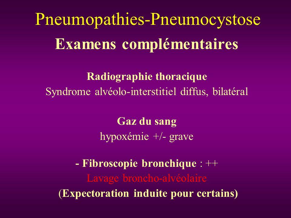 Examens complémentaires Radiographie thoracique Syndrome alvéolo-interstitiel diffus, bilatéral Gaz du sang hypoxémie +/- grave - Fibroscopie bronchiq