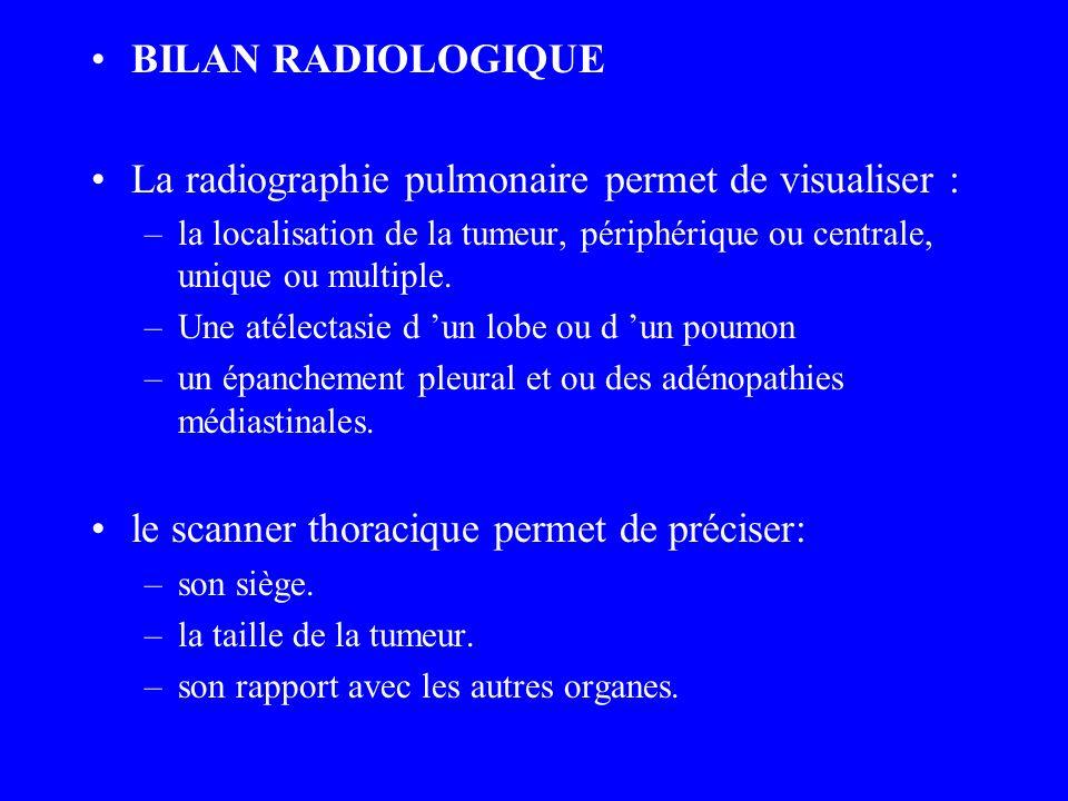 BILAN RADIOLOGIQUE La radiographie pulmonaire permet de visualiser : –la localisation de la tumeur, périphérique ou centrale, unique ou multiple. –Une