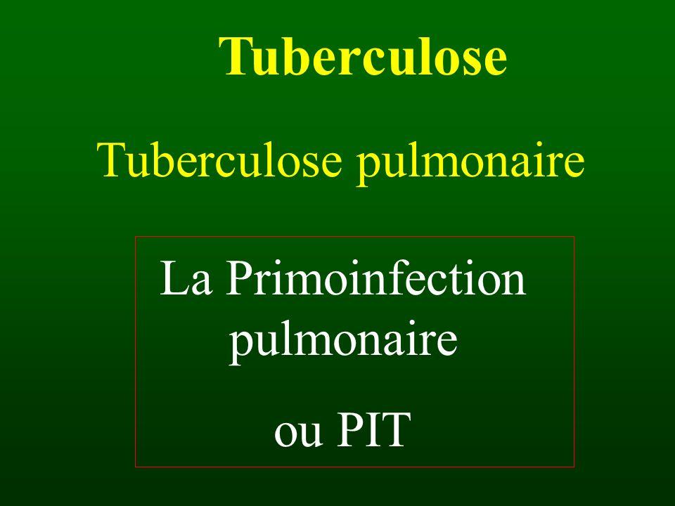 Tuberculose Tuberculose pulmonaire La Primoinfection pulmonaire ou PIT