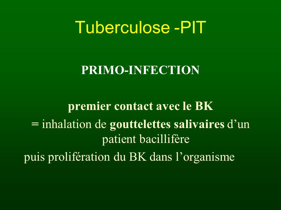 Tuberculose -PIT PRIMO-INFECTION premier contact avec le BK = inhalation de gouttelettes salivaires dun patient bacillifère puis prolifération du BK d