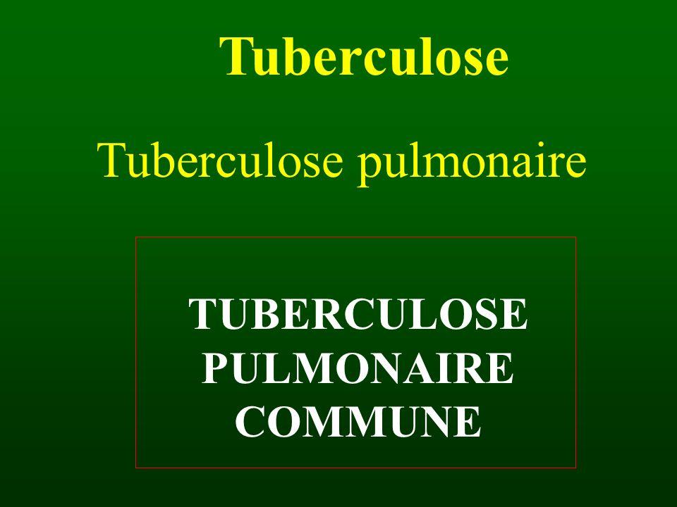 Tuberculose Tuberculose pulmonaire TUBERCULOSE PULMONAIRE COMMUNE