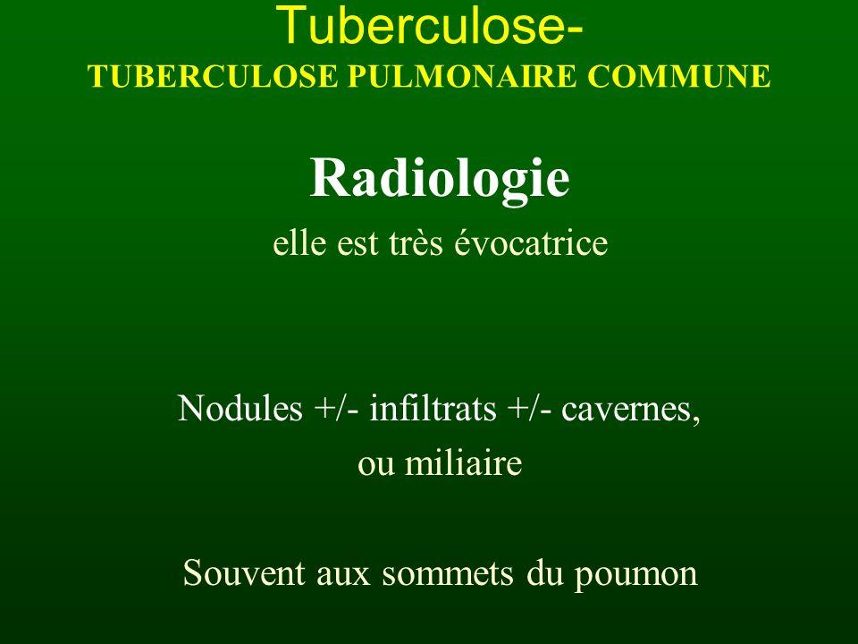 Radiologie elle est très évocatrice Nodules +/- infiltrats +/- cavernes, ou miliaire Souvent aux sommets du poumon Tuberculose- TUBERCULOSE PULMONAIRE