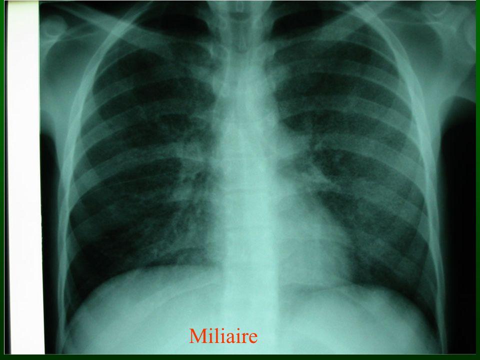 Miliaire