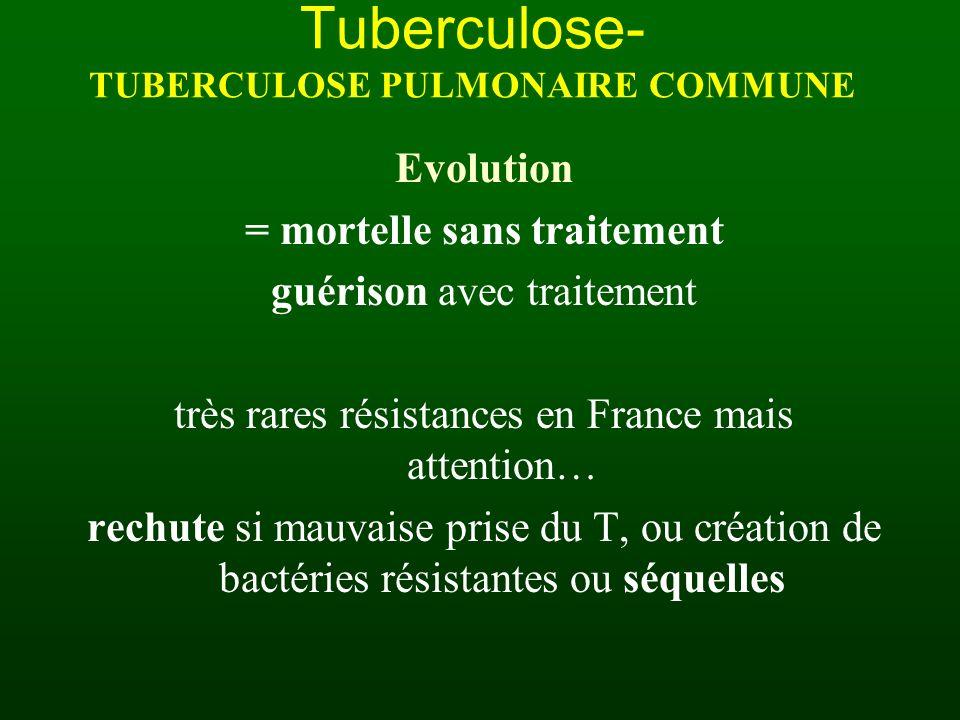 Tuberculose- TUBERCULOSE PULMONAIRE COMMUNE Evolution = mortelle sans traitement guérison avec traitement très rares résistances en France mais attent