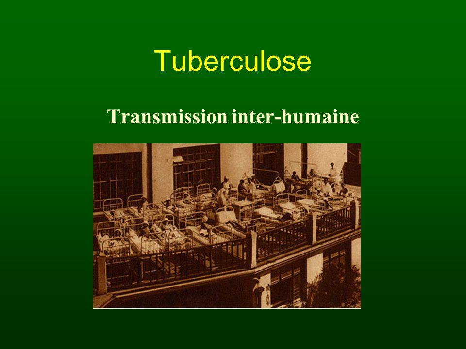 Tuberculose Transmission inter-humaine