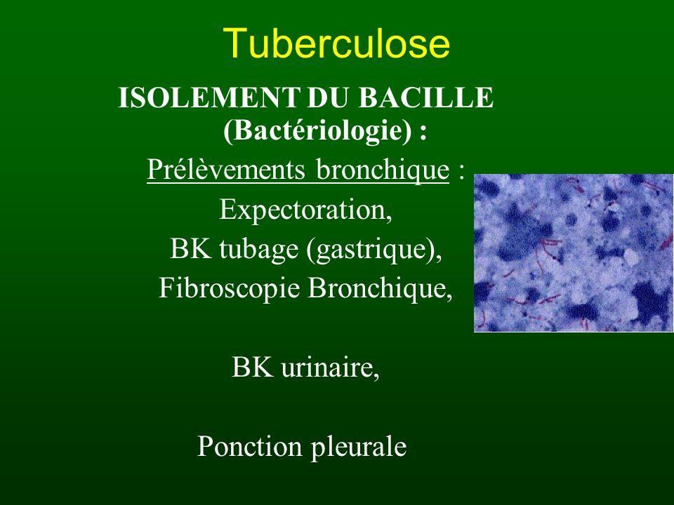 Tuberculose TESTS CUTANES Intradermo-réaction = IDR 10 unités de tuberculine = 0,1 ml - injection à la face antérieure de lavant bras - voie intra-dermique stricte - lecture à la 72ème heure : induration + si a) > 6 mm après vaccination par BCG BCG efficace b) > 8 mm sans vaccination PIT c) Phlycténulaire = tuberculose évolutive Autres tests (moins fiables) timbre monotest