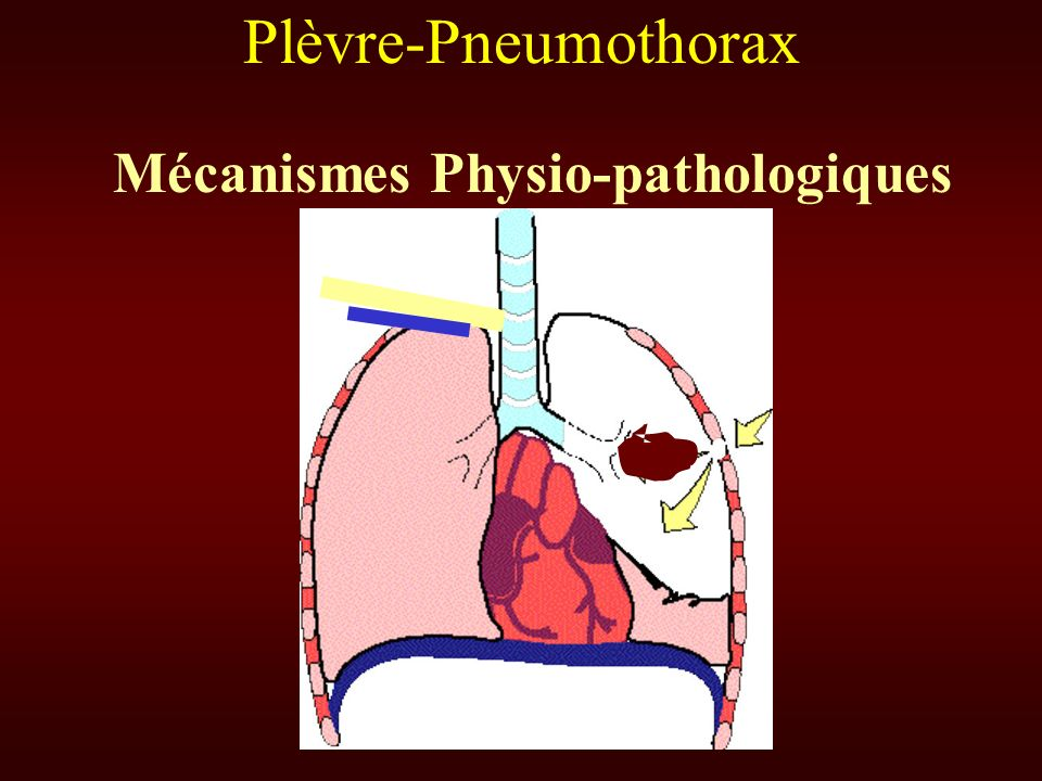 Plèvre-Pneumothorax Mécanismes Physio-pathologiques