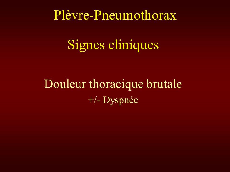 Plèvre-Pneumothorax Signes cliniques Douleur thoracique brutale +/- Dyspnée