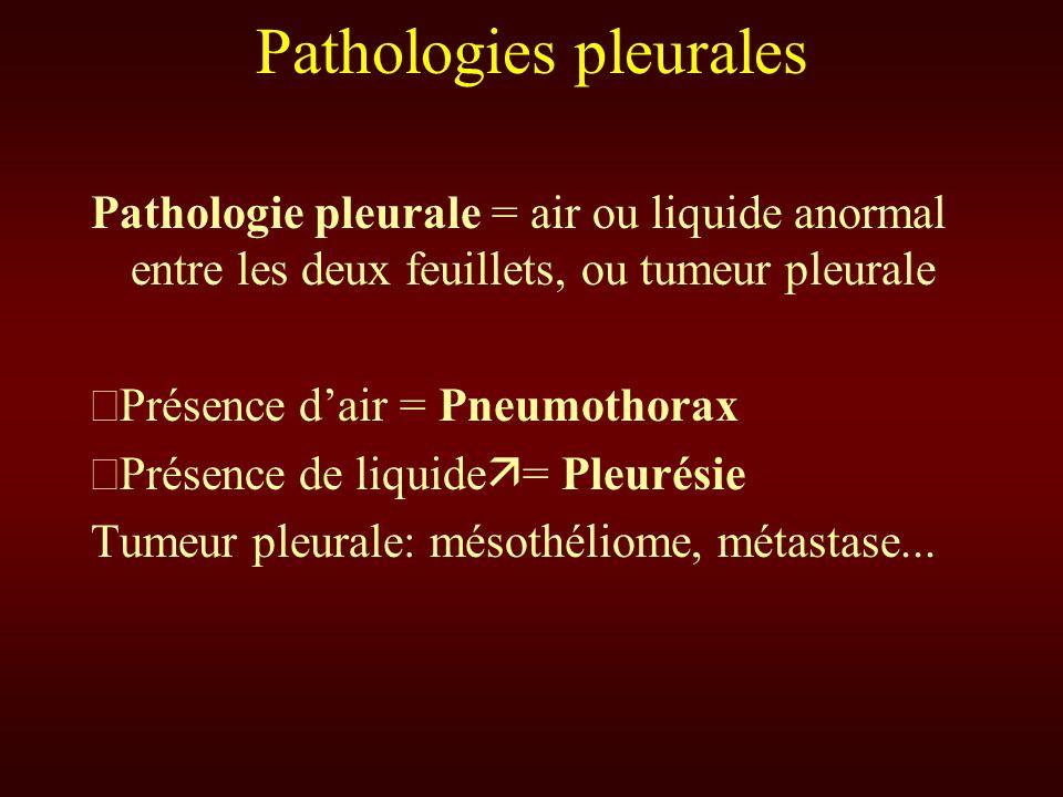 Pathologie pleurale = air ou liquide anormal entre les deux feuillets, ou tumeur pleurale Présence dair = Pneumothorax Présence de liquide = Pleurésie