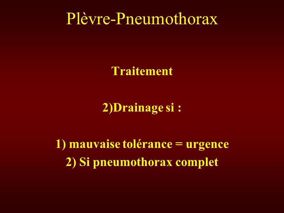 Plèvre-Pneumothorax Traitement 2)Drainage si : 1) mauvaise tolérance = urgence 2) Si pneumothorax complet