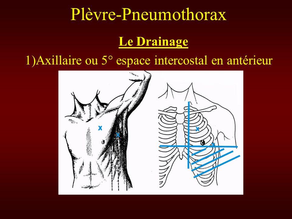 Plèvre-Pneumothorax Le Drainage 1)Axillaire ou 5° espace intercostal en antérieur