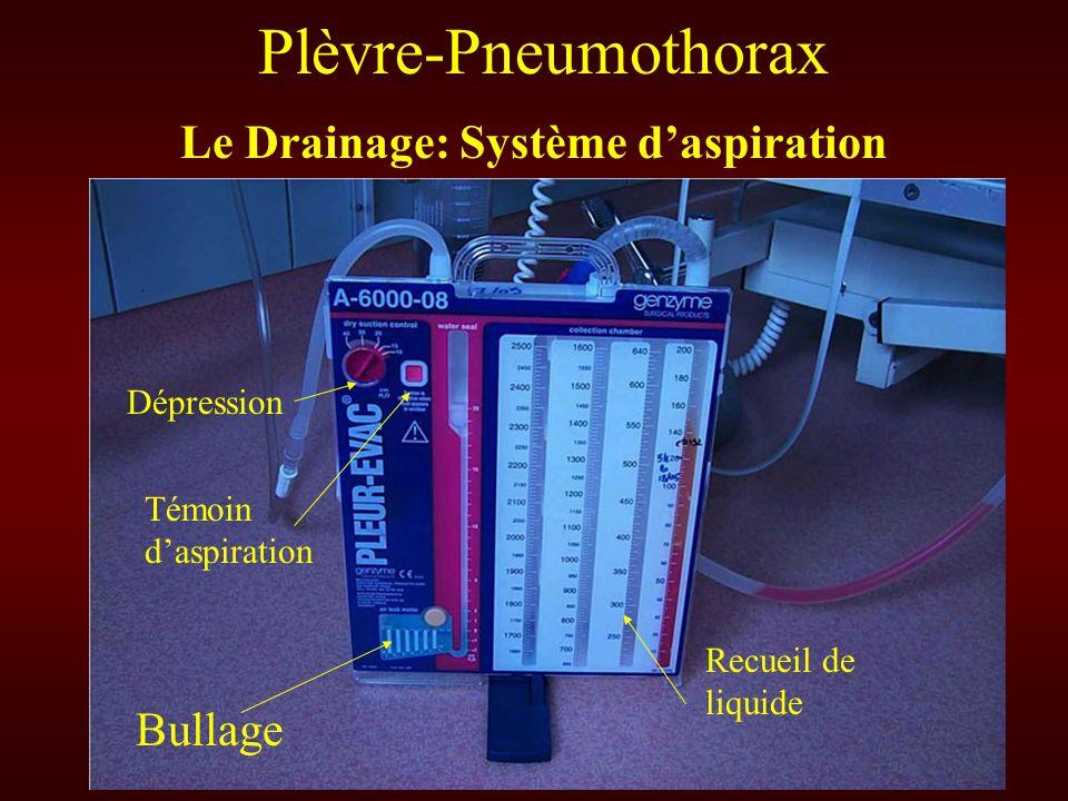 Plèvre-Pneumothorax Le Drainage: Système daspiration Bullage Dépression Recueil de liquide Témoin daspiration