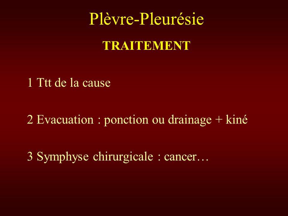 Plèvre-Pleurésie TRAITEMENT 1 Ttt de la cause 2 Evacuation : ponction ou drainage + kiné 3 Symphyse chirurgicale : cancer…