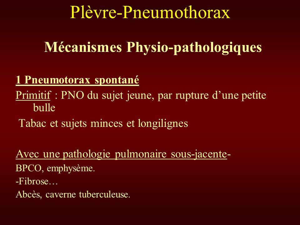 Plèvre-Pneumothorax Mécanismes Physio-pathologiques 1 Pneumotorax spontané Primitif : PNO du sujet jeune, par rupture dune petite bulle Tabac et sujet