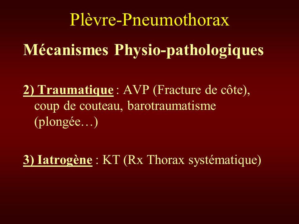 Plèvre-Pneumothorax Mécanismes Physio-pathologiques 2) Traumatique : AVP (Fracture de côte), coup de couteau, barotraumatisme (plongée…) 3) Iatrogène