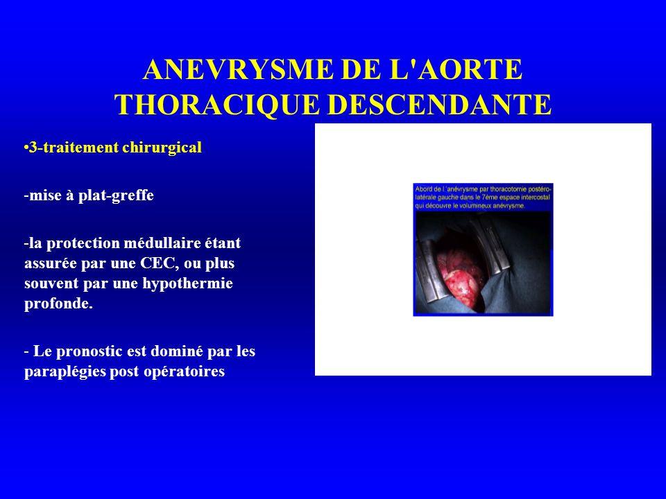 ANEVRYSME DE L AORTE THORACIQUE DESCENDANTE 3-traitement chirurgical -mise à plat-greffe -la protection médullaire étant assurée par une CEC, ou plus souvent par une hypothermie profonde.