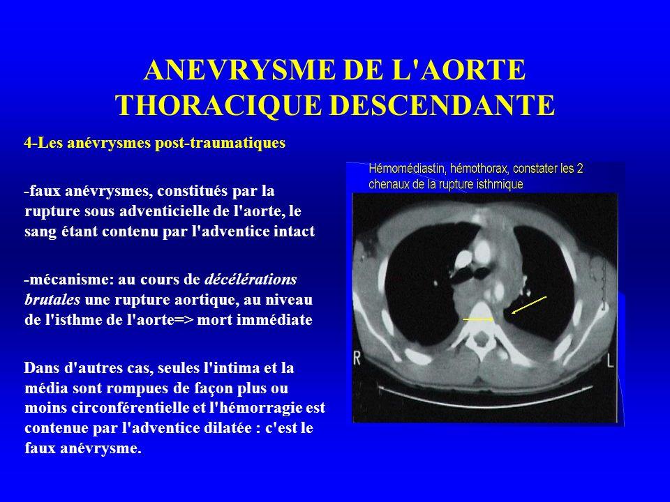 ANEVRYSME DE L AORTE THORACIQUE DESCENDANTE 4-Les anévrysmes post-traumatiques -faux anévrysmes, constitués par la rupture sous adventicielle de l aorte, le sang étant contenu par l adventice intact -mécanisme: au cours de décélérations brutales une rupture aortique, au niveau de l isthme de l aorte=> mort immédiate Dans d autres cas, seules l intima et la média sont rompues de façon plus ou moins circonférentielle et l hémorragie est contenue par l adventice dilatée : c est le faux anévrysme.