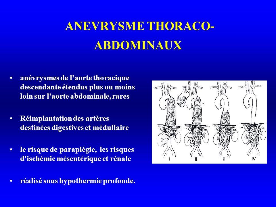 ANEVRYSME THORACO- ABDOMINAUX anévrysmes de l aorte thoracique descendante étendus plus ou moins loin sur l aorte abdominale, rares Réimplantation des artères destinées digestives et médullaire le risque de paraplégie, les risques d ischémie mésentérique et rénale réalisé sous hypothermie profonde.