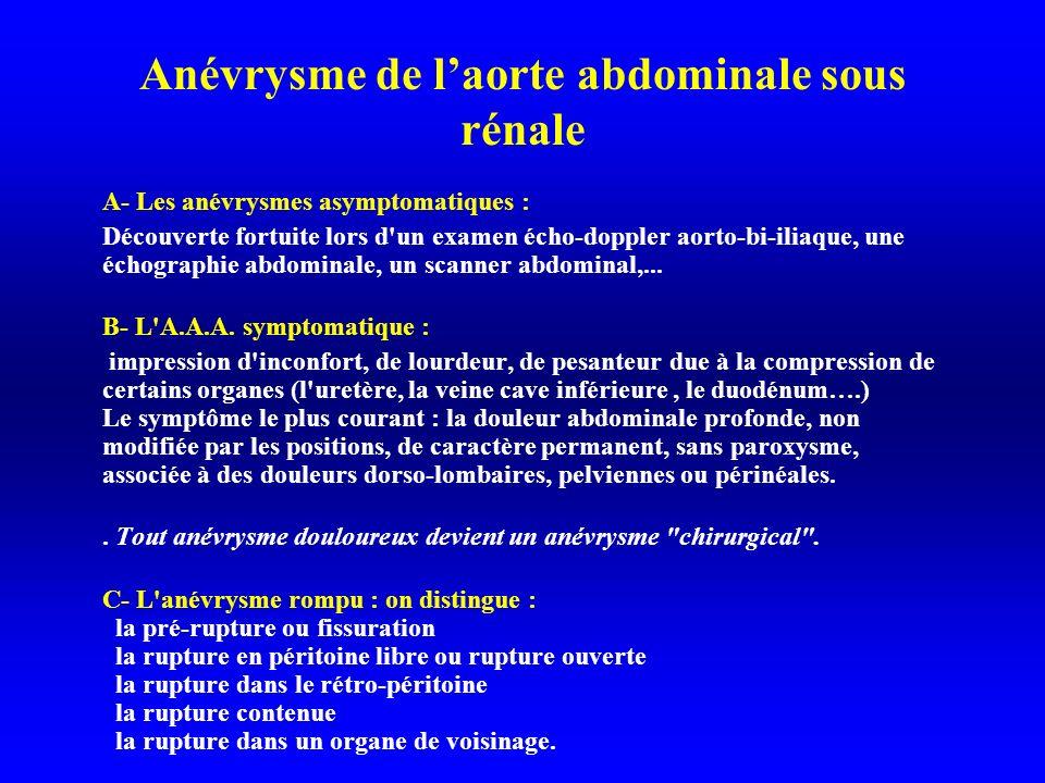 Anévrysme de laorte abdominale sous rénale A- Les anévrysmes asymptomatiques : Découverte fortuite lors d un examen écho-doppler aorto-bi-iliaque, une échographie abdominale, un scanner abdominal,...