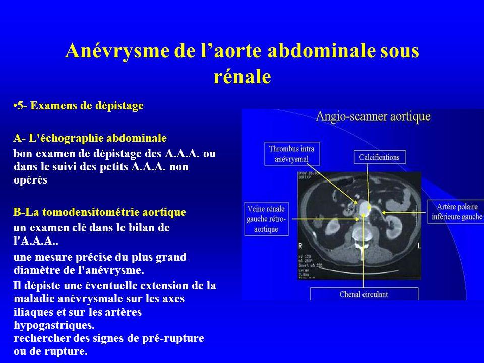 Anévrysme de laorte abdominale sous rénale 5- Examens de dépistage A- L échographie abdominale bon examen de dépistage des A.A.A.