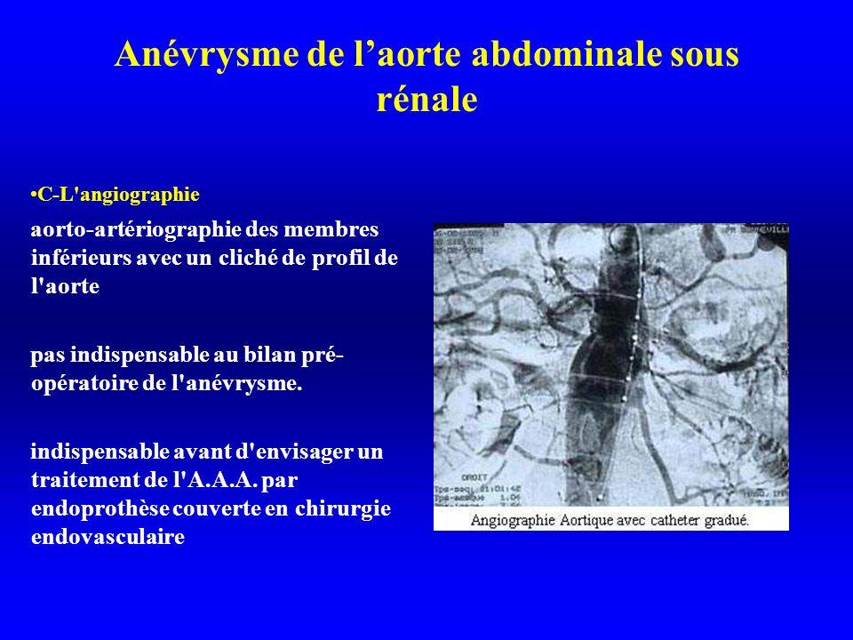 Anévrysme de laorte abdominale sous rénale C-L angiographie aorto-artériographie des membres inférieurs avec un cliché de profil de l aorte pas indispensable au bilan pré- opératoire de l anévrysme.