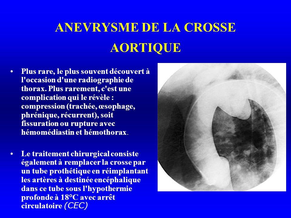 ANEVRYSME DE LA CROSSE AORTIQUE Plus rare, le plus souvent découvert à l occasion d une radiographie de thorax.